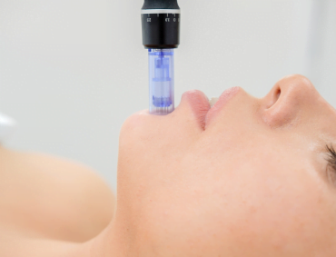 Dermapen czyli mezoterapia mikroigłowa wykonana oryginalnym urządzeniem medycznym, to zabieg polegający zarówno na pobudzeniu jak i regeneracji włókien kolagenu i elastyny poprzez mechaniczną stymulację za pomocą specjalistycznej głowicy z kilkunastoma mikroigłami, która nakłuwa skórę. Powstałe mikro urazy wykorzystują naturalne zdolności organizmu do naprawy skóry a także do fizjologicznej indukcji kolagenu. Mezoterapia mikroigłowa to zabieg o bardzo szerokim zakresie działania. Dodatkowo zastosowanie serii mikronakłuć powoduje uruchomienie procesów regeneracyjnych, które z powodzeniem zwalczają efekty starzenia się skóry: zmarszczki, brak jędrności czy utrata owalu twarzy. Natomiast sam zabieg przynosi bardzo dobre efekty w redukcji blizn jak i rozstępów. Tymczasem w połączeniu z odpowiednio dobranymi preparatami stanowi skuteczną broń w walce z wieloma innymi defektami. Mezoterapię mikroigłową wykonuje się przy użyciu nowoczesnego urządzenia, którego działanie oparte jest na zasadzie automatycznego nakłuwania skóry przy pomocy pulsujących igieł. Mikroigiełki wnikają na głębokość od 0,5 mm do 2 mm, co dodatkowo umożliwia aplikację substancji aktywnych w głąb skóry właściwej