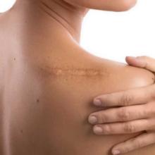 Gen Factor to nowatorski preparat, wykorzystywany w medycynie i kosmetologii komórkowej do całościowej odbudowy i regeneracji skóry. Głównym zadaniem Gen Factora 03 jest pobudzanie wzrostu komórek i tkanek. Dzieje się tak dzięki pobudzaniu do tworzenia się DNA. Nasza skóra zaczyna wykształcać nie tylko nowe włókna kolagenowe, ale też całą macierz tkankową, łącznie z gaszeniem wszelkich stanów zapalnych. Gen Factor idealnie sprawdzi się w każdym wypadku, kiedy potrzebna jest szybka odbudowa skóry. Preparat posiada udokumentowane działanie: przeciwstarzeniowe, przeciwtrądzikowe, w przypadku leczenia trudno gojących się ran np. oparzeń czy owrzodzeń, w przypadku blizn potrądzikowych, pooparzeniowych a także ubytków w tkankach czy rozstępów