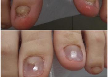 terapia wrastającyh paznokci